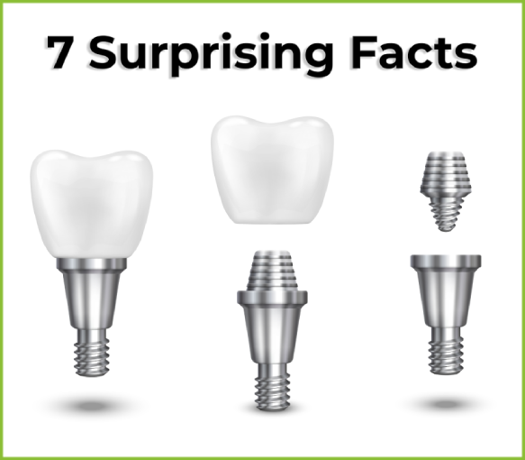 Dental Implants: Interesting and Surprising Facts